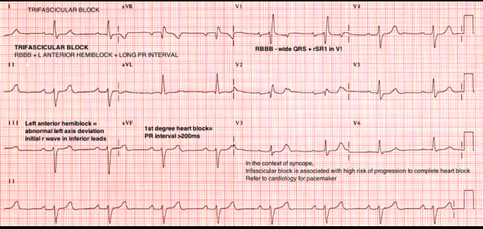 63 ecg answer Trifasicular block